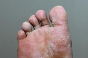 operațiunea varicleoza pe picioare la bărbați